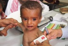Underweight children in Yemen